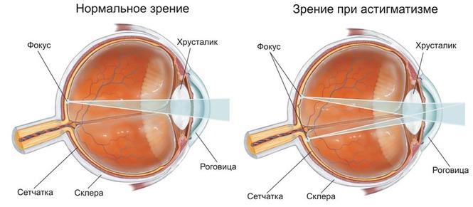 Лазерная коррекция зрения в житомире цены